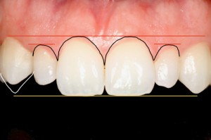 Atlanta Smile Design Dentistry