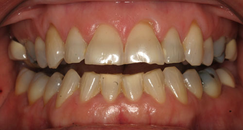 Bruxism Discolored