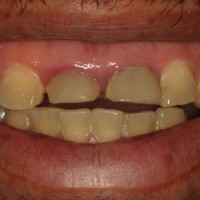 Bruxism Severe