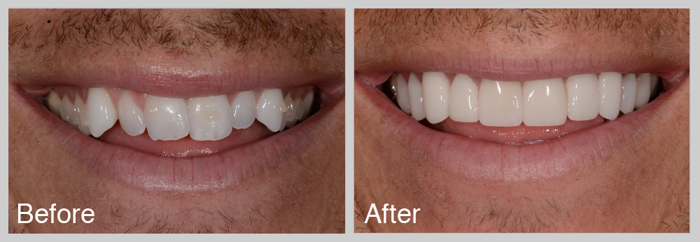 Client had started with Invisalign, but wanted faster results.