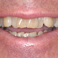 Crowded Teeth Discolored
