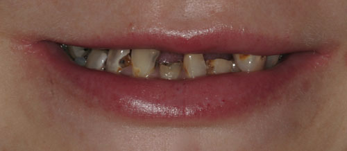 Decay, Front Teeth