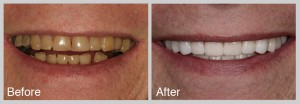 discolored veneers