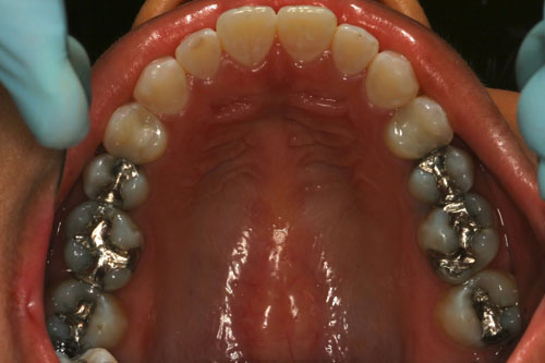Mercury Fillings