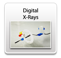 digitalxrays