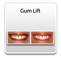 gumlift