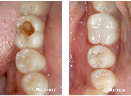 5.--Tooth-Colored-Restorations