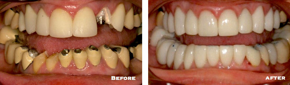 9.--Full-Mouth-Reconstruction2